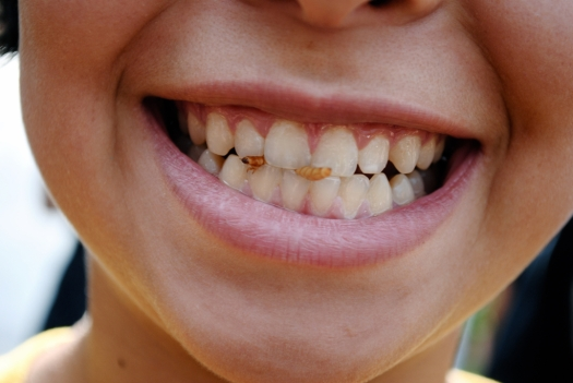 Zahnprobleme
